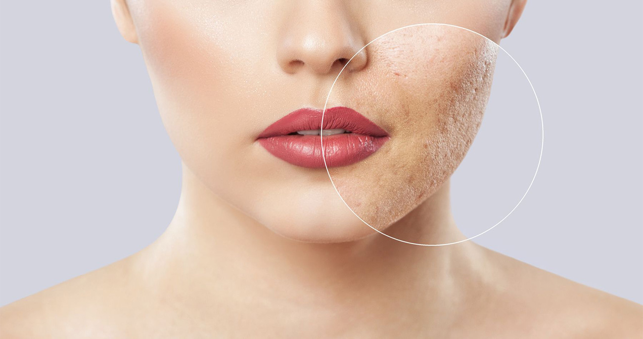 Acne Scar Treatment - Aesthetic Clinic Singapore
