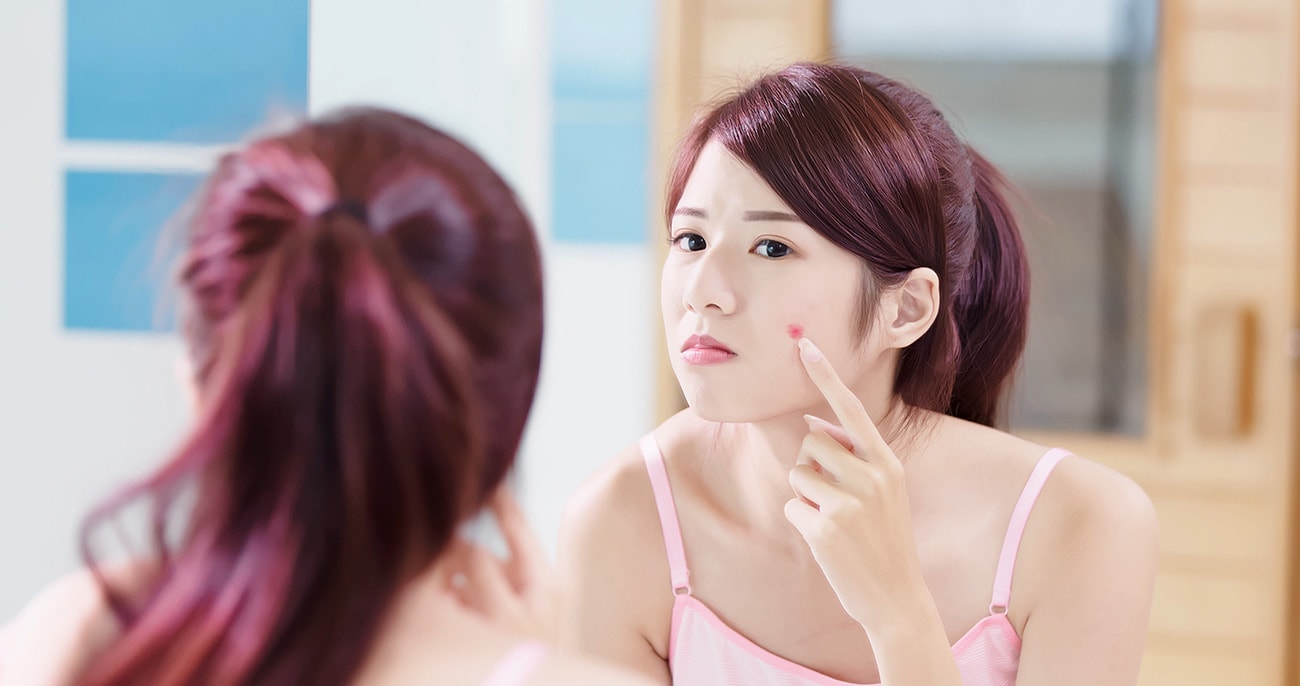 Acne Treatment - Aesthetic Clinic Singapore