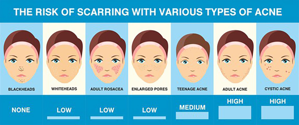 Acne Treatment - The Lifestyle Clinic
