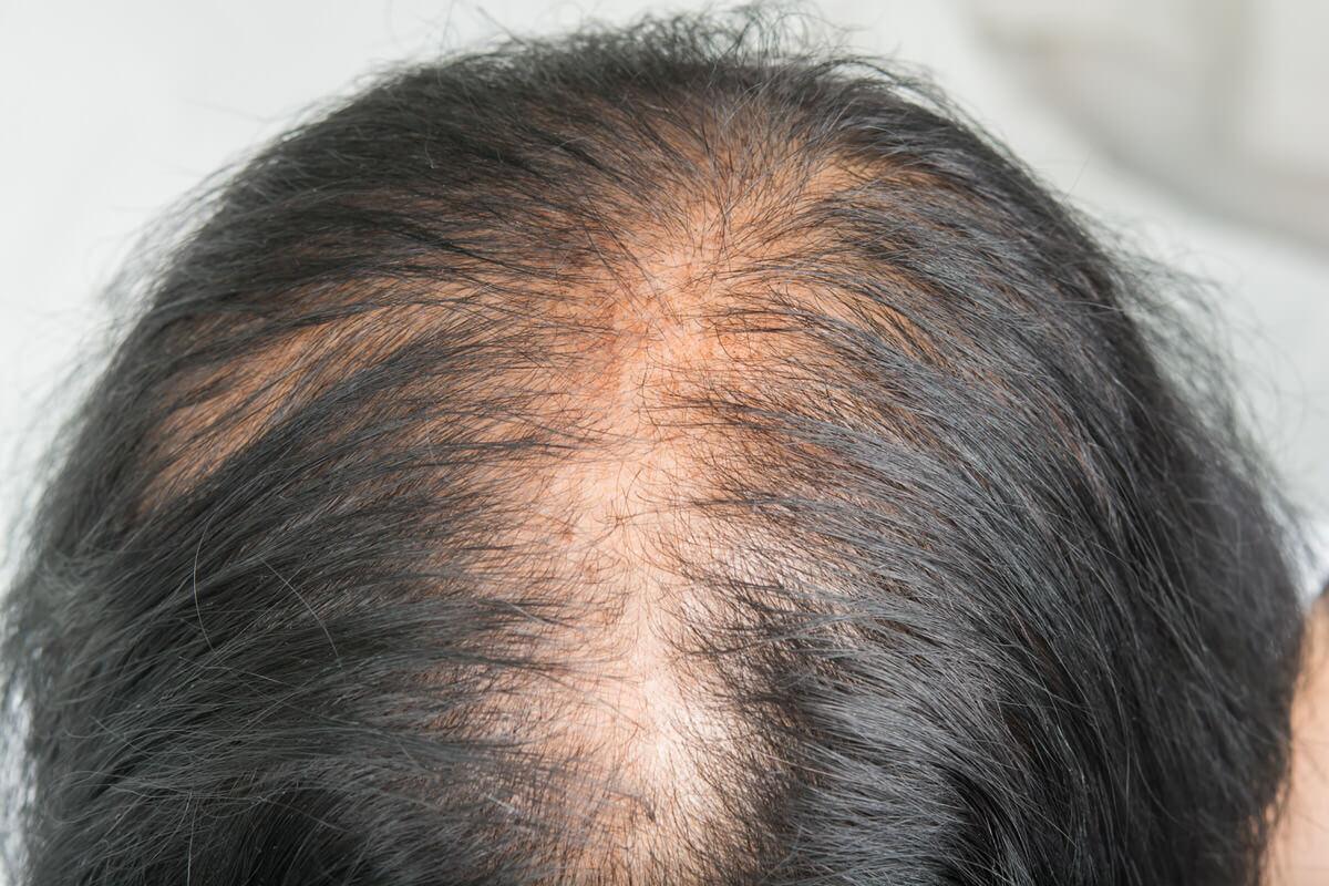 Female Pattern Hair Loss Treatment