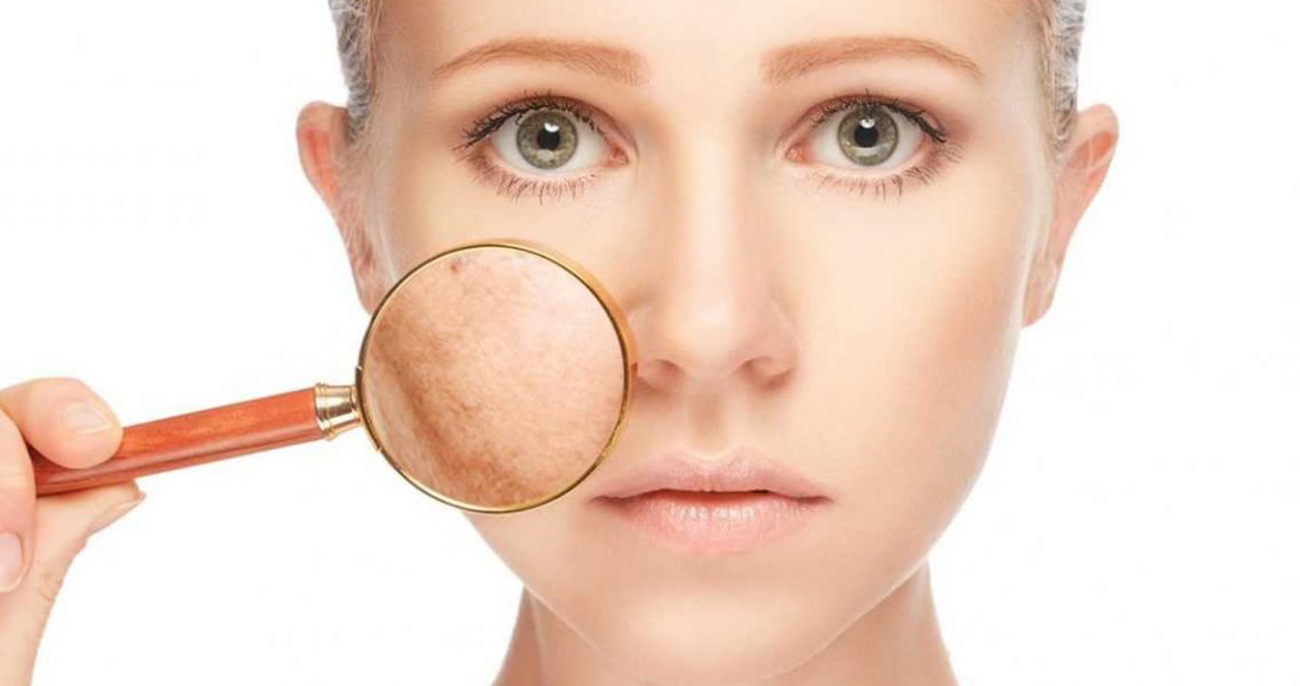 Pigmentation Treatment - Aesthetic Clinic Singapore