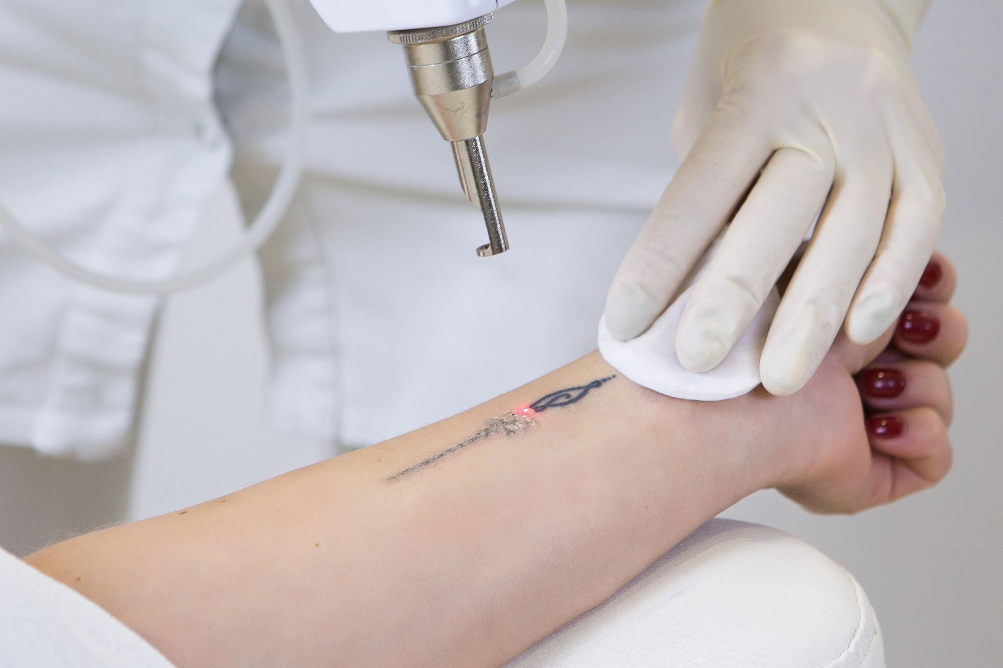 Tattoo Removal - Aesthetic Clinic
