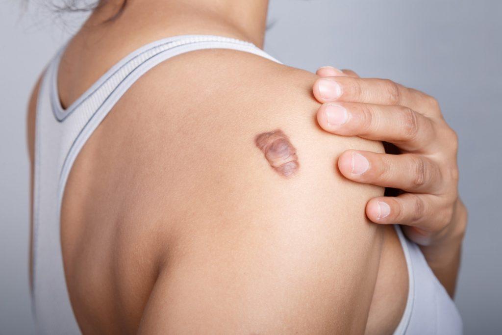 Keloid Scars Treatment